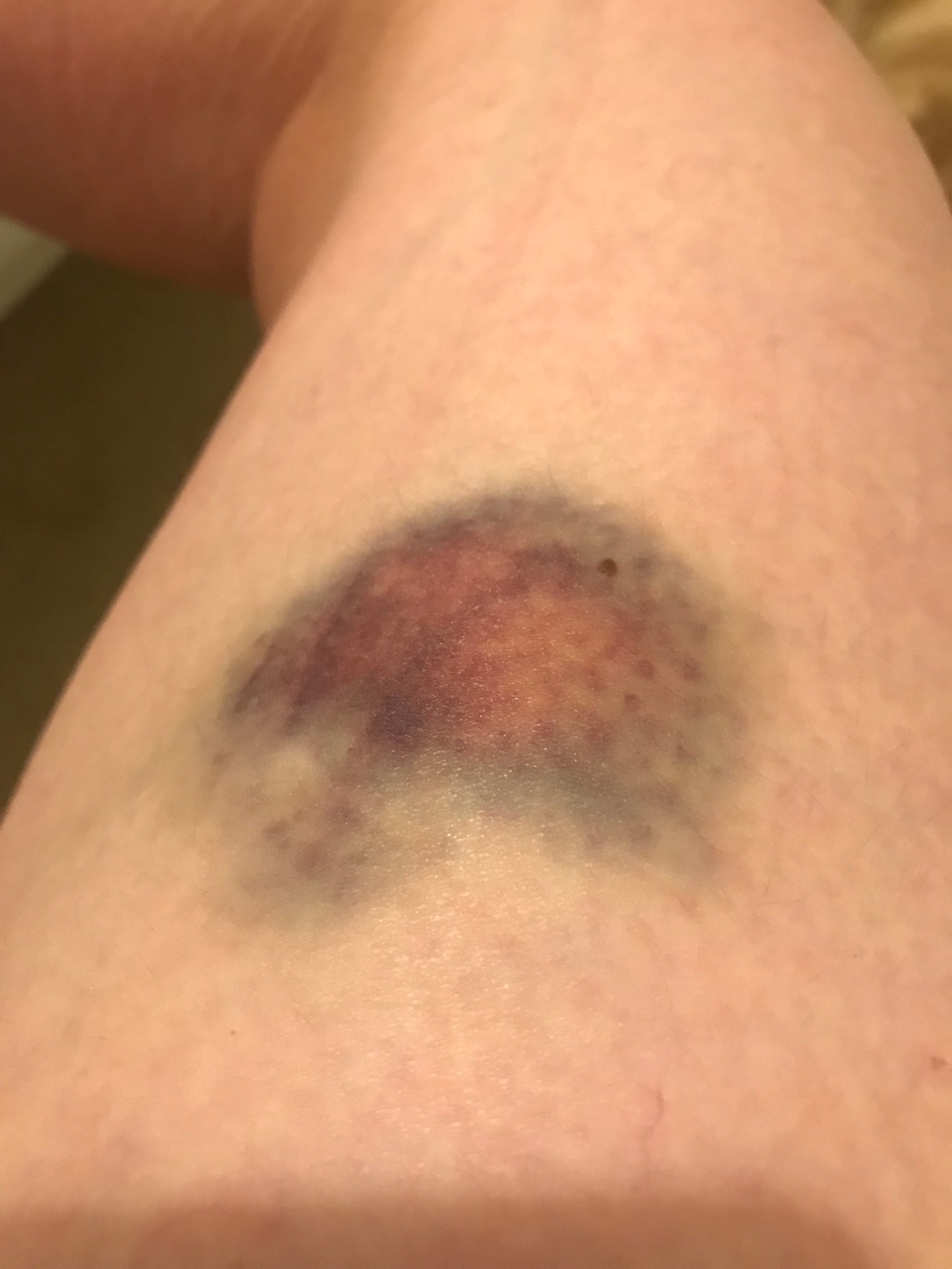 Hello Bath Skyline bruise